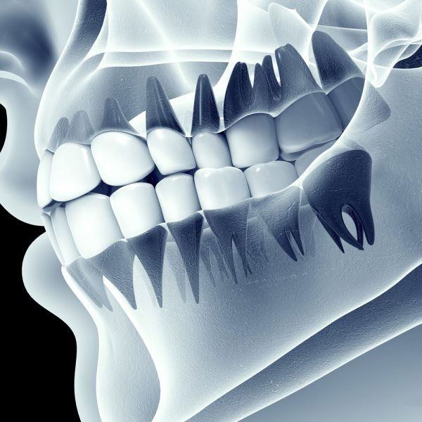 fogászati-röntgen-CT-X-ray-and-CT-dentistry