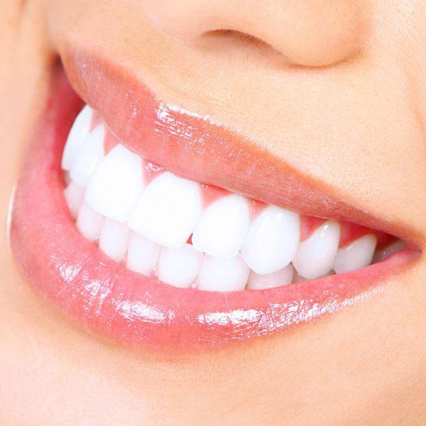 Bleaching-Tooth-whitening-globe-Dental-Zahnklinik-Ungarn-Budapest-balatonkenese