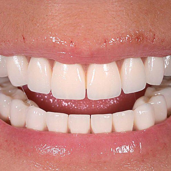 Globe-Dental-Zahnklinik-und-Implantologie-Ungarn-Feste-Zähne-in-5-Tagen 4