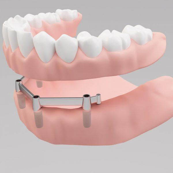 Implantatgestuzte-Stegprothese-globe-dental-zahnklinik-ungarn-balatonkenese-budapest