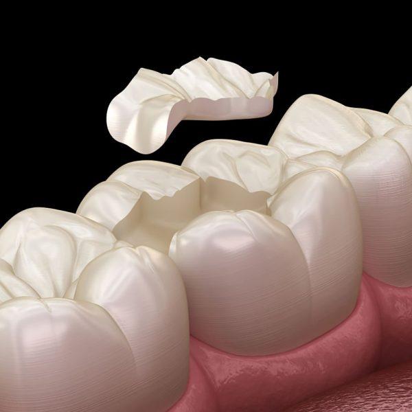 Inlays-onlays-Inlay-Onlay-fillings-Globe-dental-zahnklinik-Ungarn-Budapest-Balatonkenese