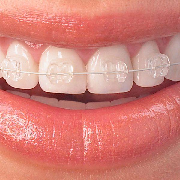 Kieferorthopädie-Orthodontics-Globe-Dental-Zahnklinik-Budapest-Balatonkenese