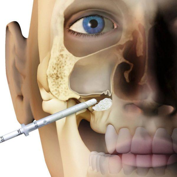Knochenaufbau-globe-dental-zahnklinik-ungarn-budapest-balatonkenese