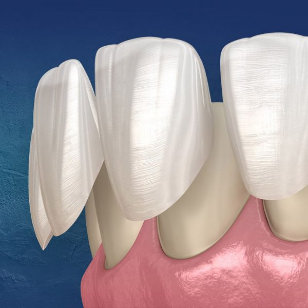 Veneers-Keramikschalen-Globe-Dental-Zahnklinik-Ungarn-Budapest-Balatonkenese