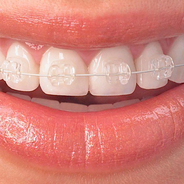 Fogszabályozás-Orthodontics