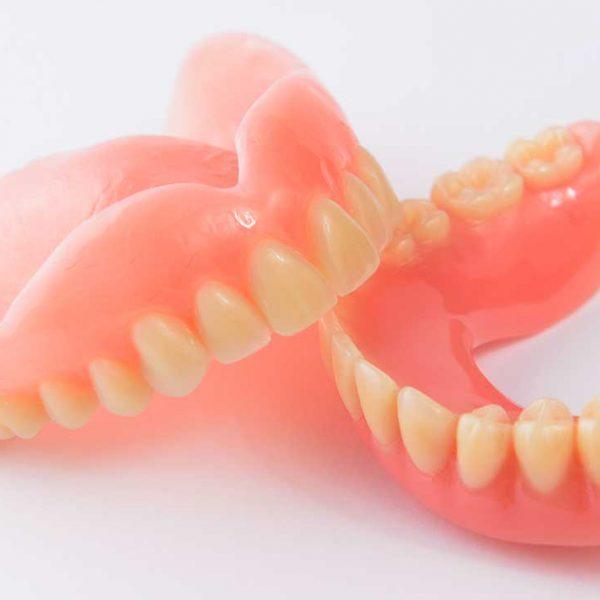 Kivehető-hagyományos-fogsor-Removable-dentures-are-conventional