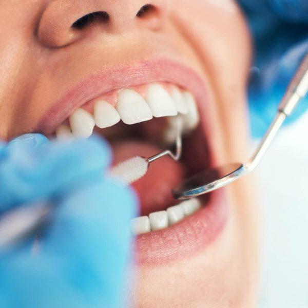 Parodontologia-Periodontics