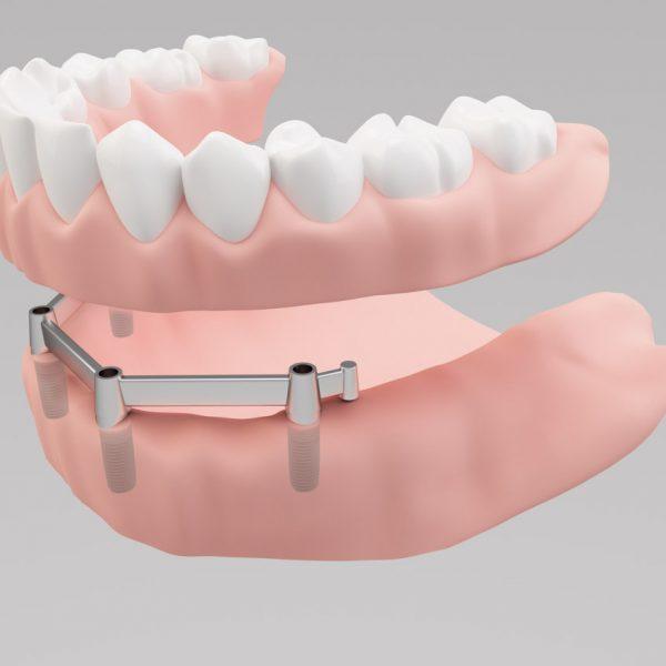 Stéges-fogsor-Dental-dentures