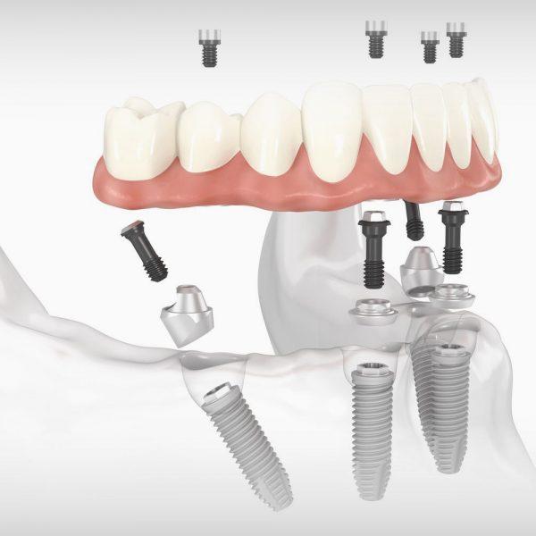 All-on-4-implantátum-implant-1