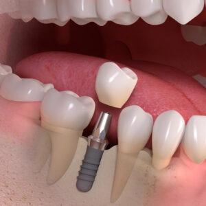 lehetséges-e implantátumok elhelyezése magas vérnyomás esetén)