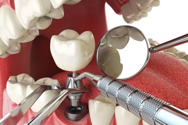 3d-implantatum-3d-implant-1.jpg