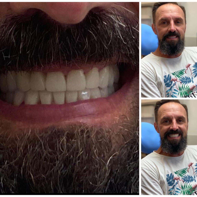 Globe-Dental-Munkaink-ilyen-volt-ilyen-lett-03.jpg