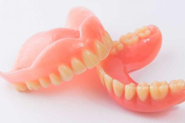 Kiveheto-hagyomanyos-fogsor-Removable-dentures-are-conventional.jpg