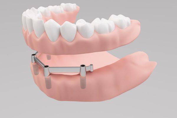 Steges-fogsor-Dental-dentures.jpg