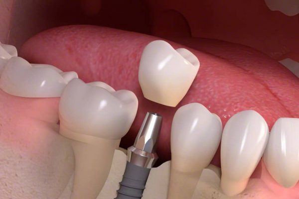 strauman-implant-1.jpg